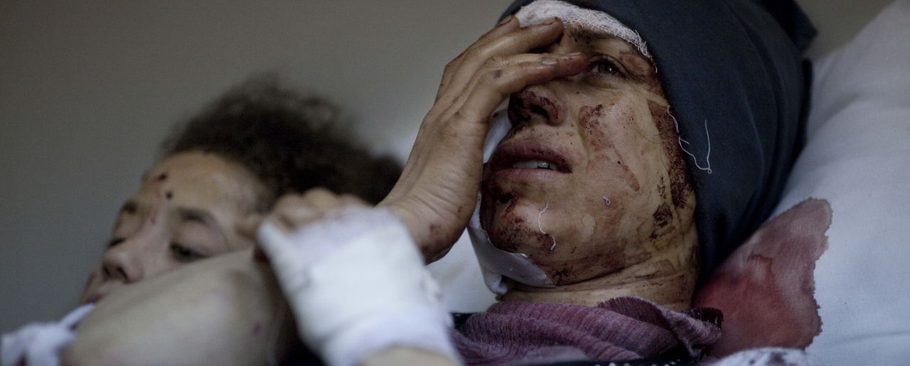 In this March 10, 2012 photo, Aida, 32, reacts as she recovers from severe injuries after the Syrian Army shelled her house in Idlib north Syria, Saturday, March 10, 2012. Aida's husband and two of her children were killed after their home was shelled. (AP Photo/Rodrigo Abd)
